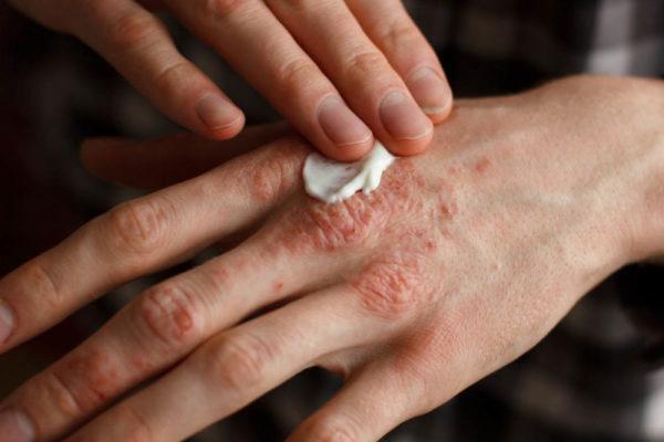 лечение экземы рук
