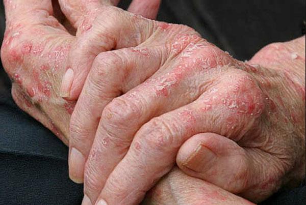 возникновению заболевания способствуют многие факторы