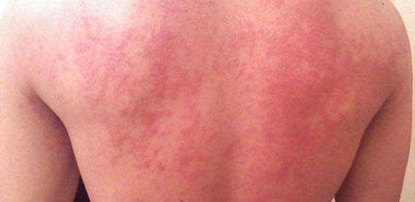 аллергия на ультрафиолет