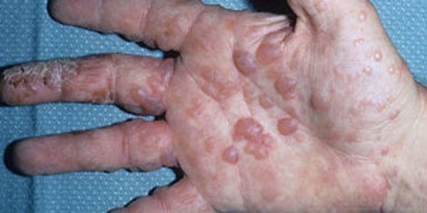водяная экзема на ладонях и пальцах руки